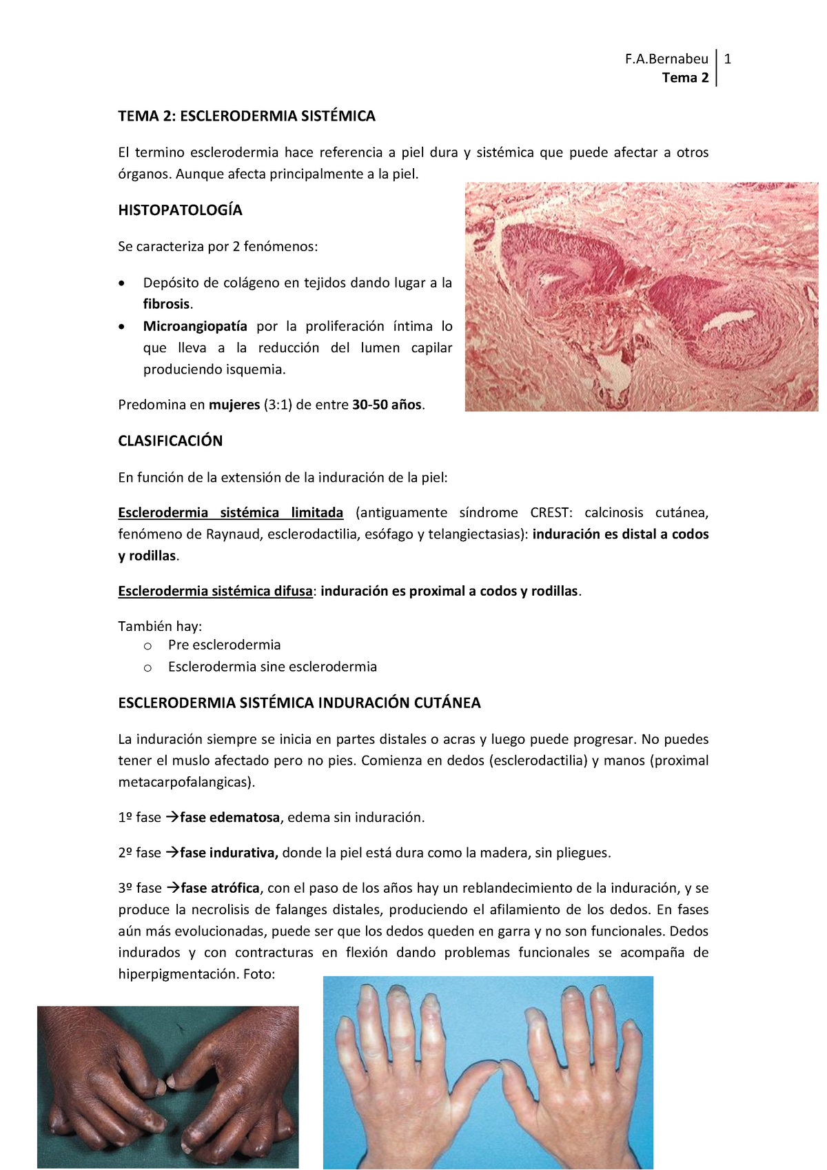 esclerodermia limitada