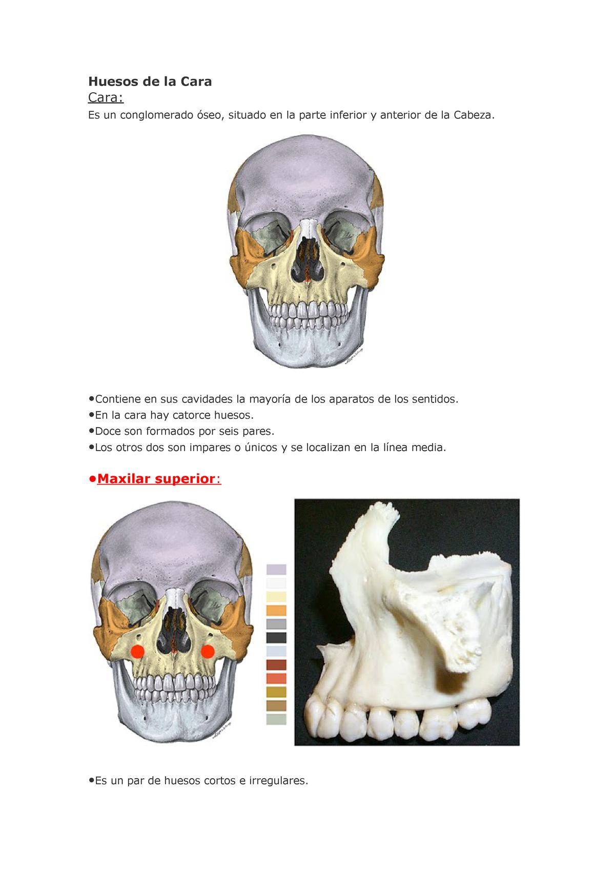 agenesia del hueso frontal