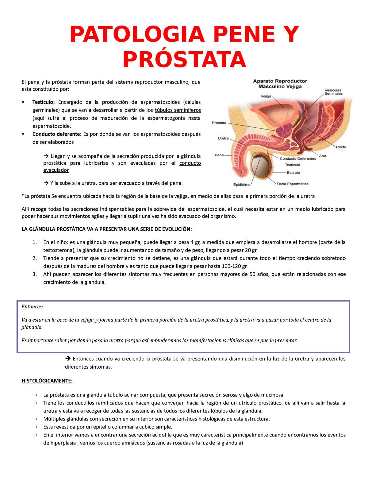 síntomas de displasia de próstata