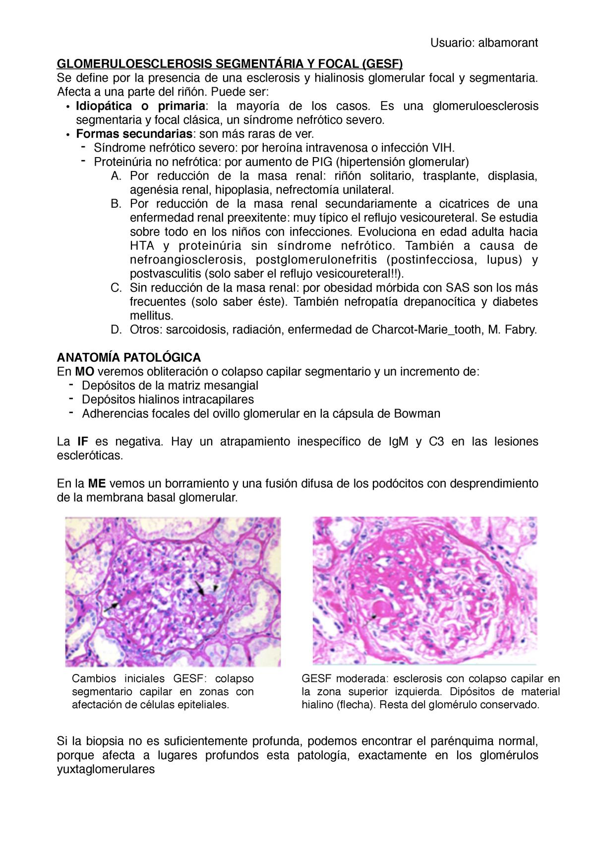 Medicación focal segmentaria glomeruloesclerosis hipertensión