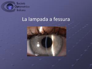 Optometrista esame paziente femminile su lampada a fessura u foto