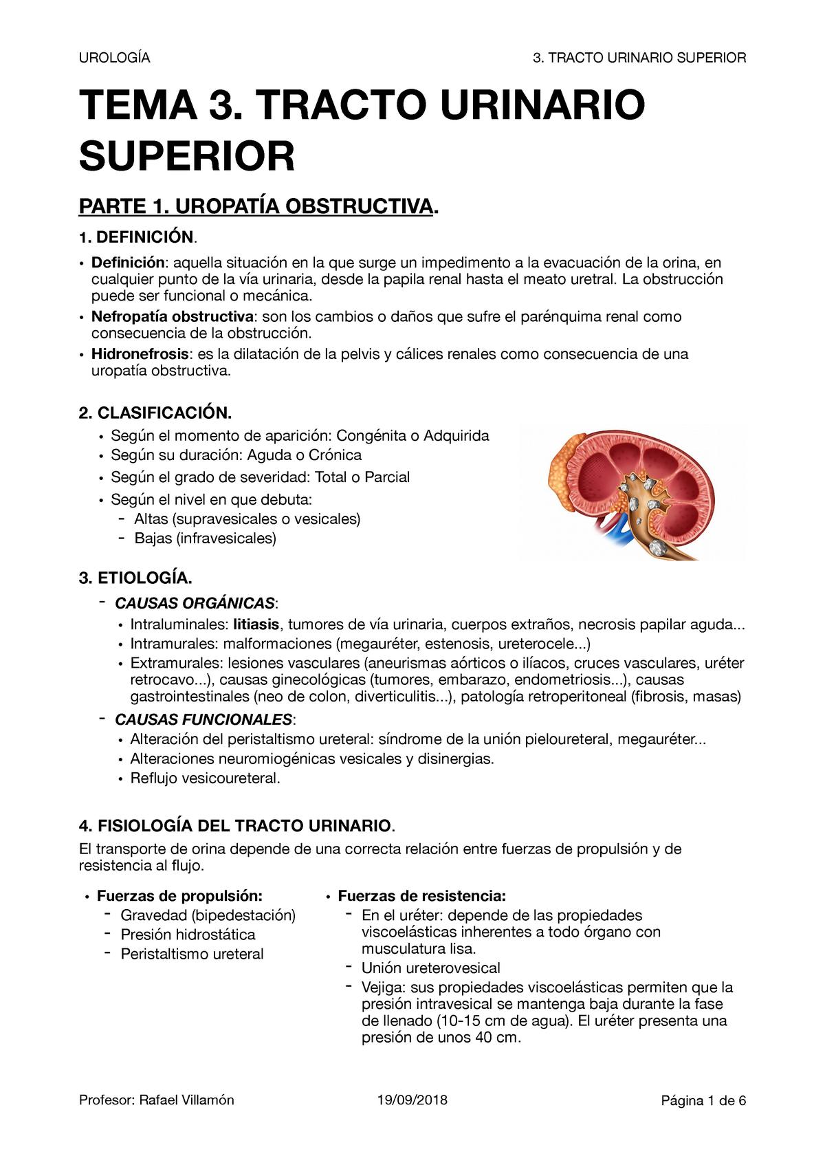 obstrucción del tracto urinario