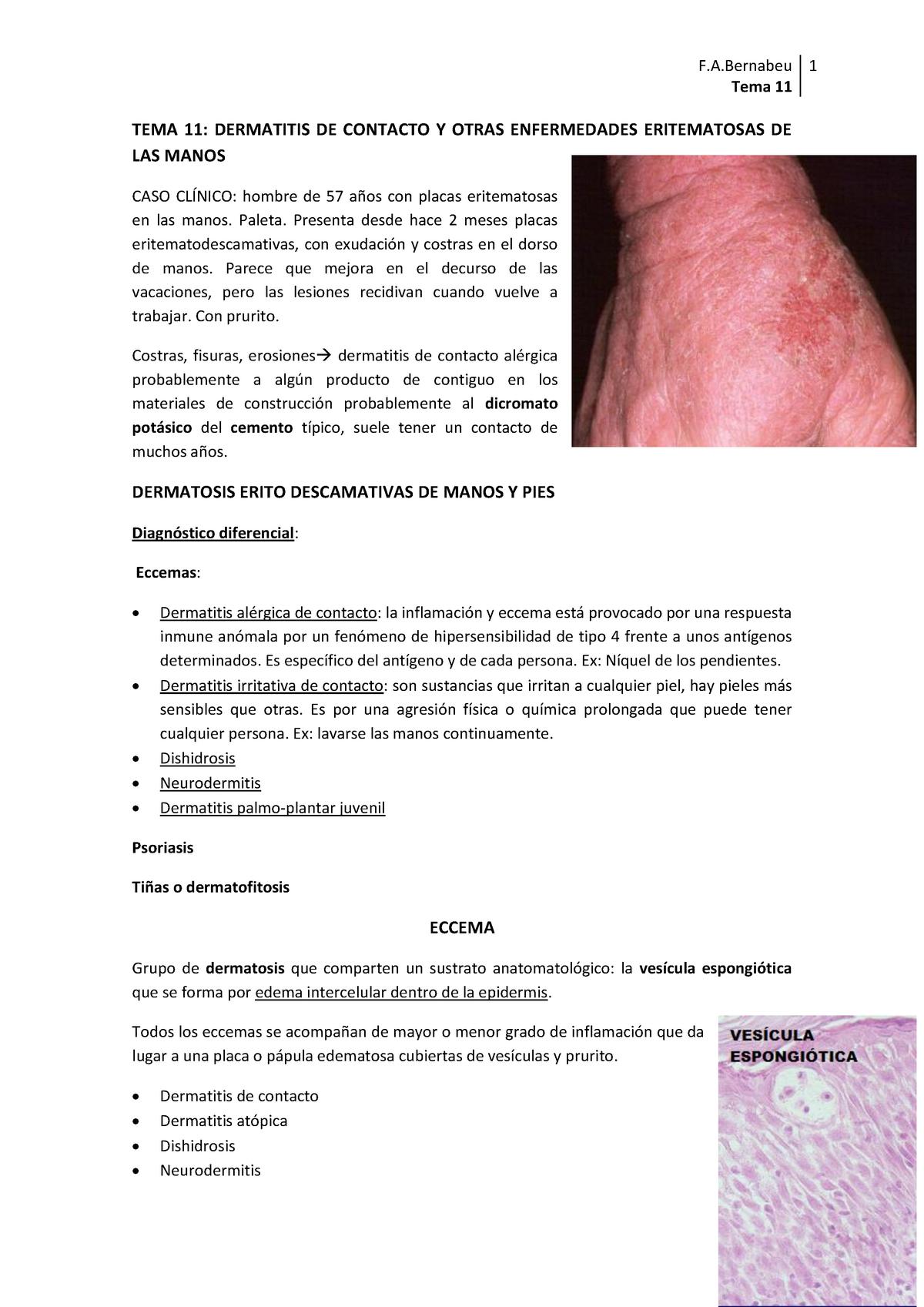 Dermatitis de contacto en manos y pies