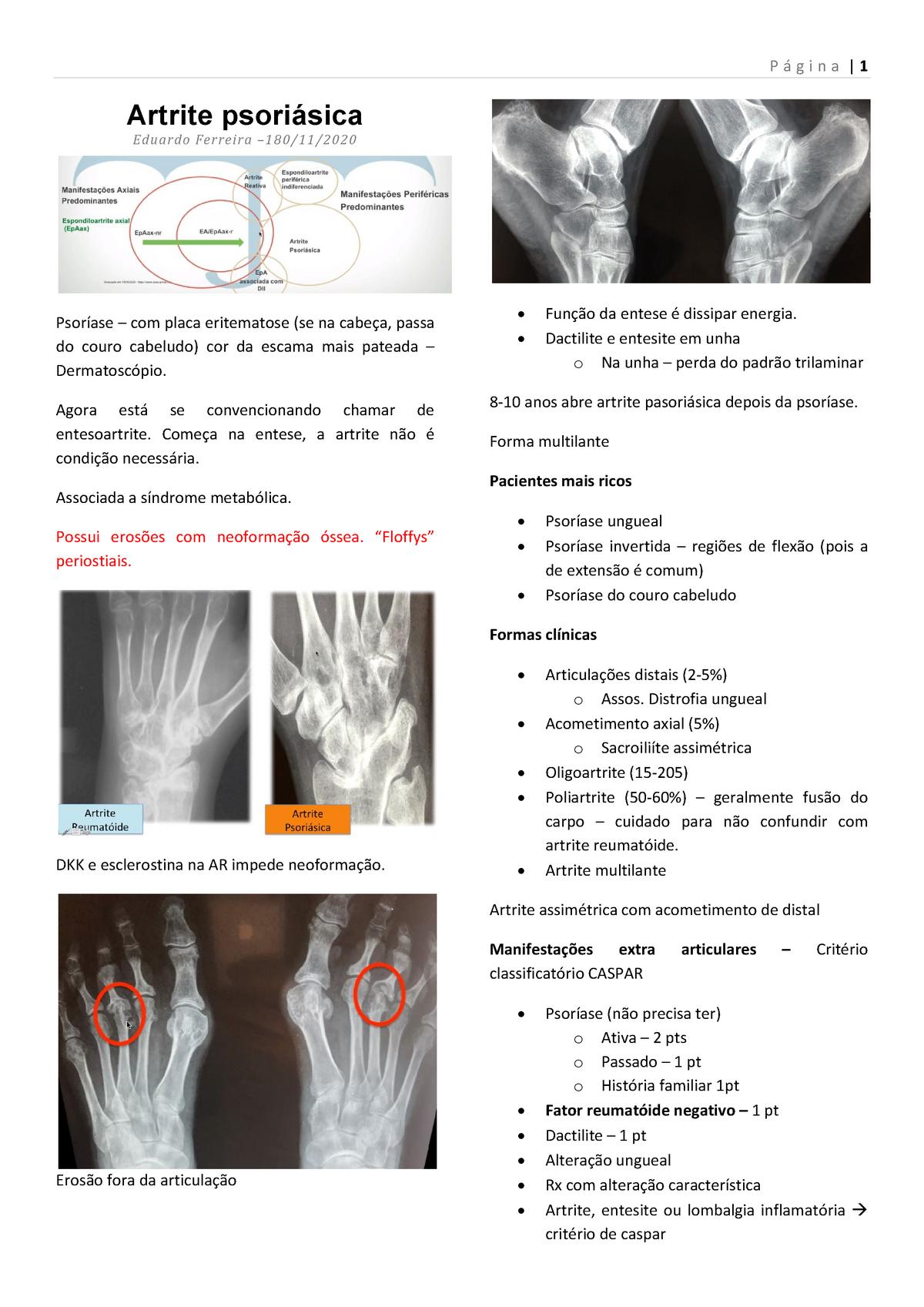condroprotectoare pentru artroza articulației încheieturii durere în articulația umărului și braț