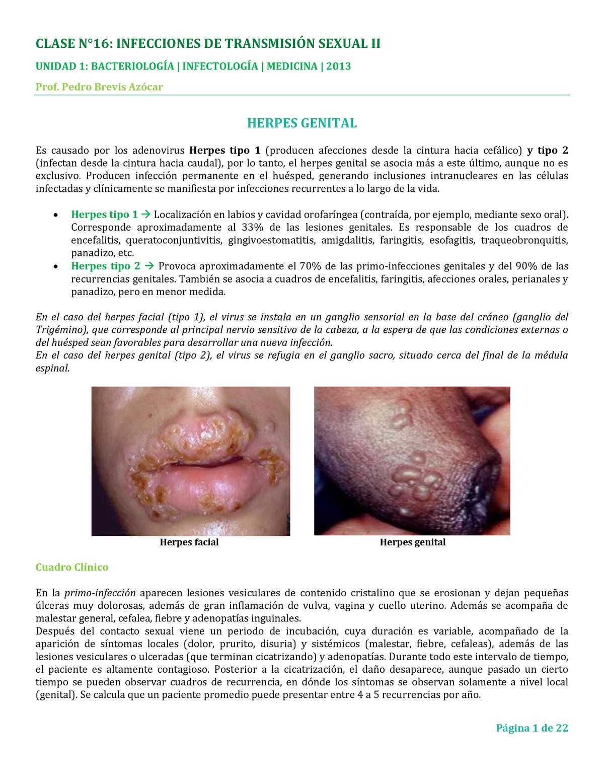 Ureaplasma condilom