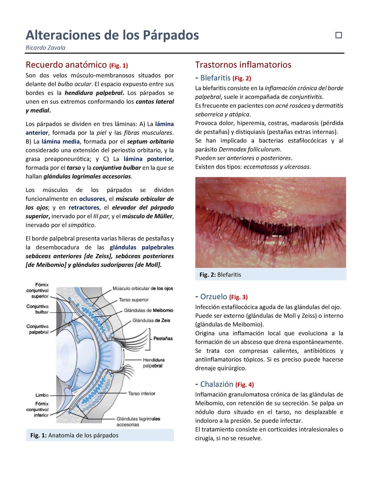 edema palpebral alergico tratamiento