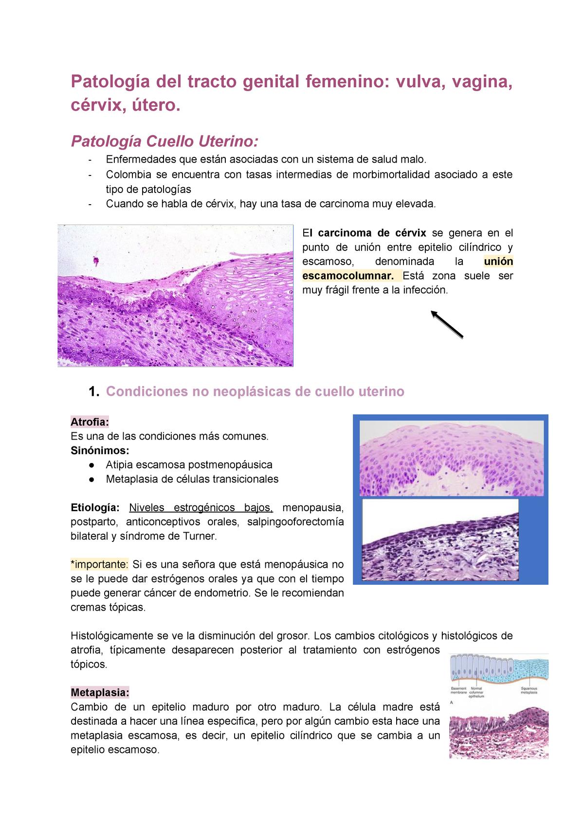 metaplasia escamosa endocervical que es