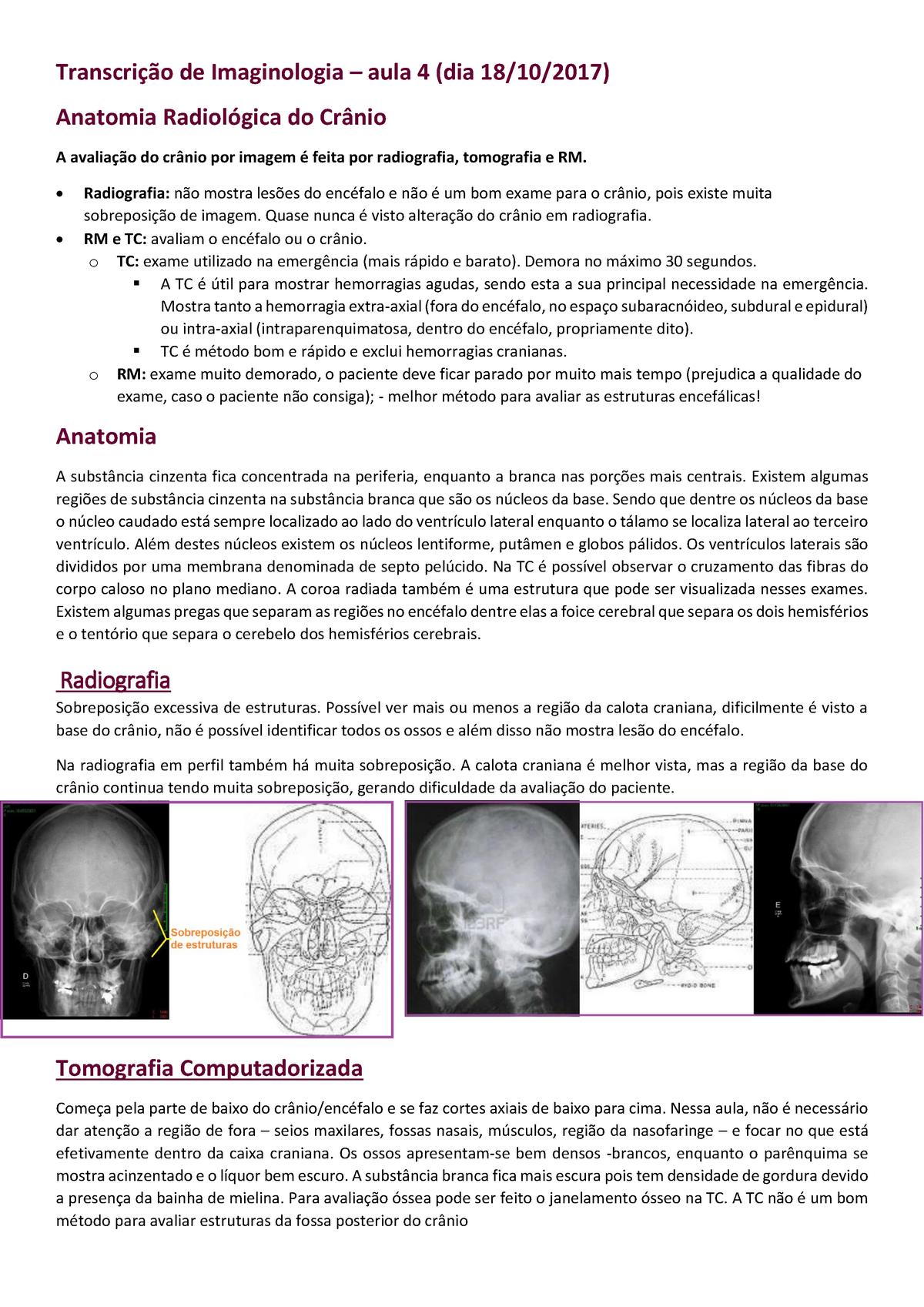 Imaginologia Aula 4 Anatomia Radiológica Do Crânio