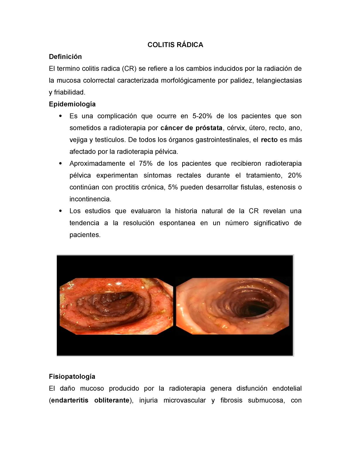 proctitis por radiación después del cáncer de próstata