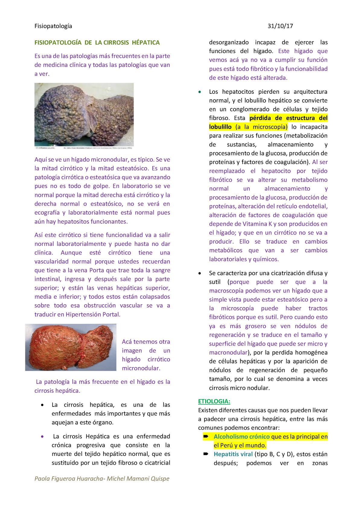 trombosis de la vena esplénica fisiopatología de la diabetes