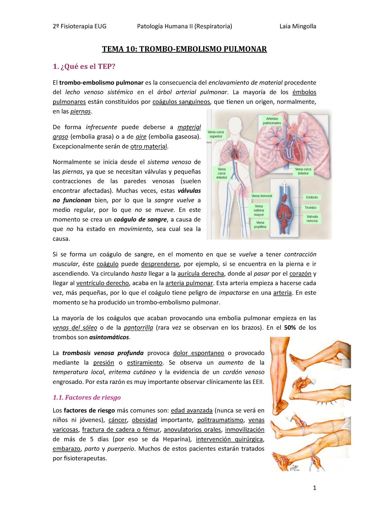 Síndrome de embolia gaseosa arterial