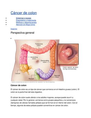 Cancer de colon edad joven. Cancer de colon edad