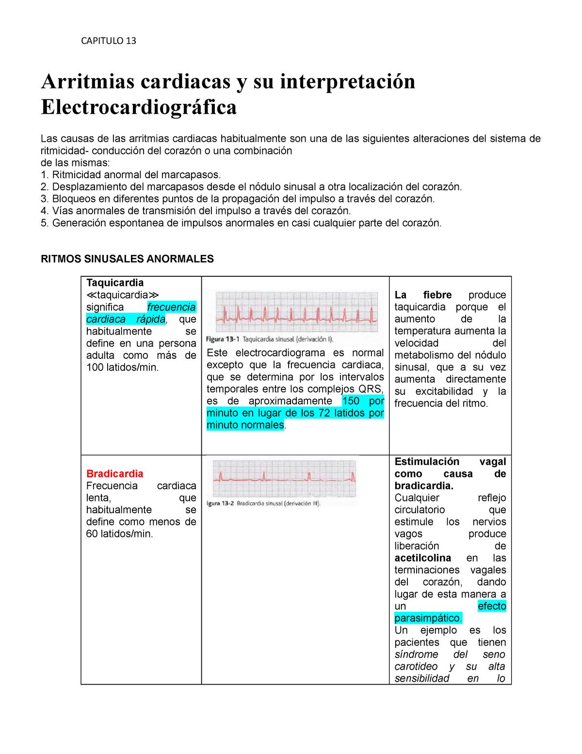 causas+de+una+taquicardia+sinusal