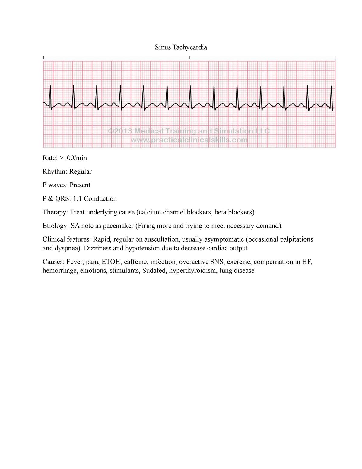 Sinus Tachycardia - Cardiac - 122 Nursing 122 - StuDocu