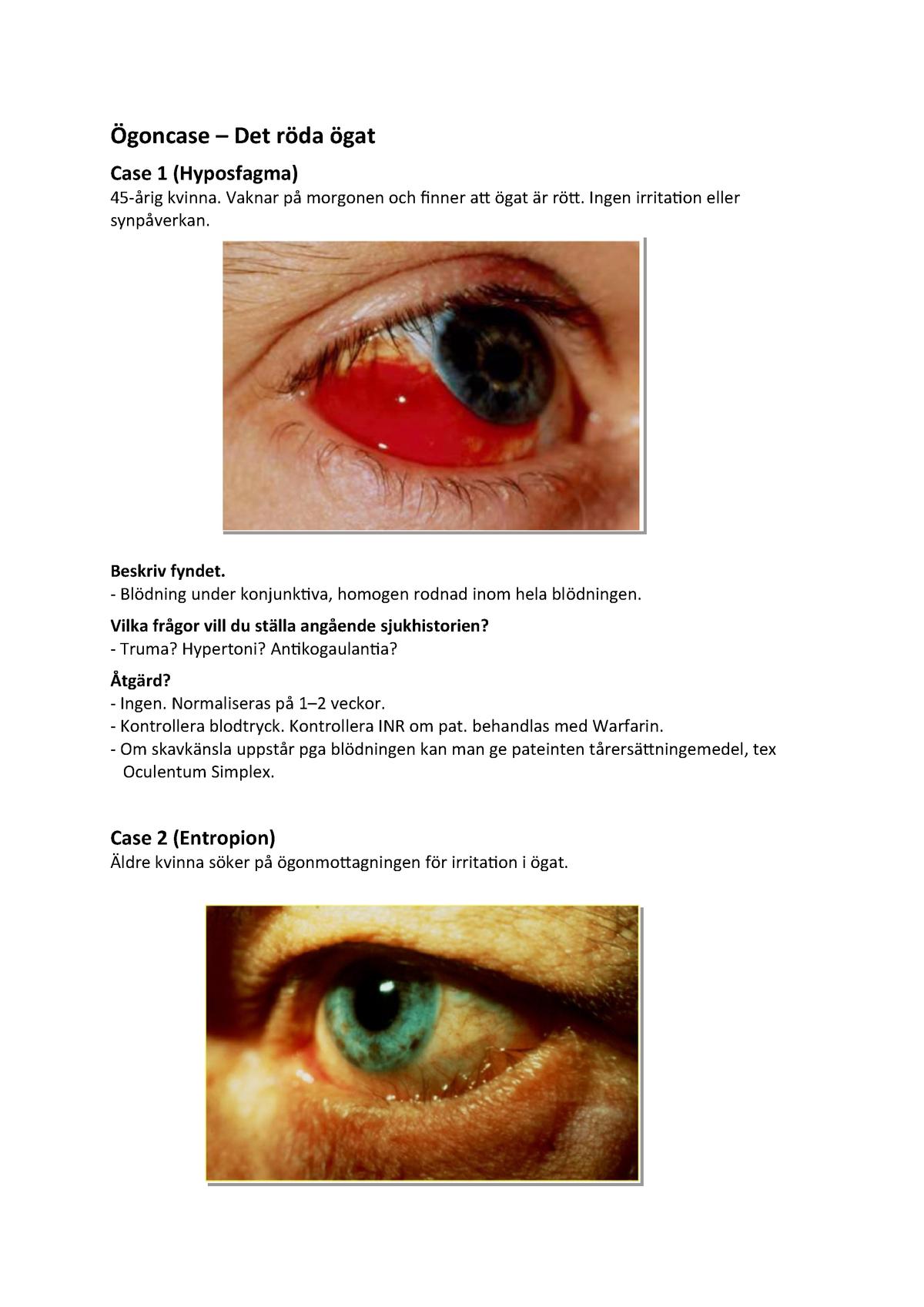 Upprepade blödningar i ögat