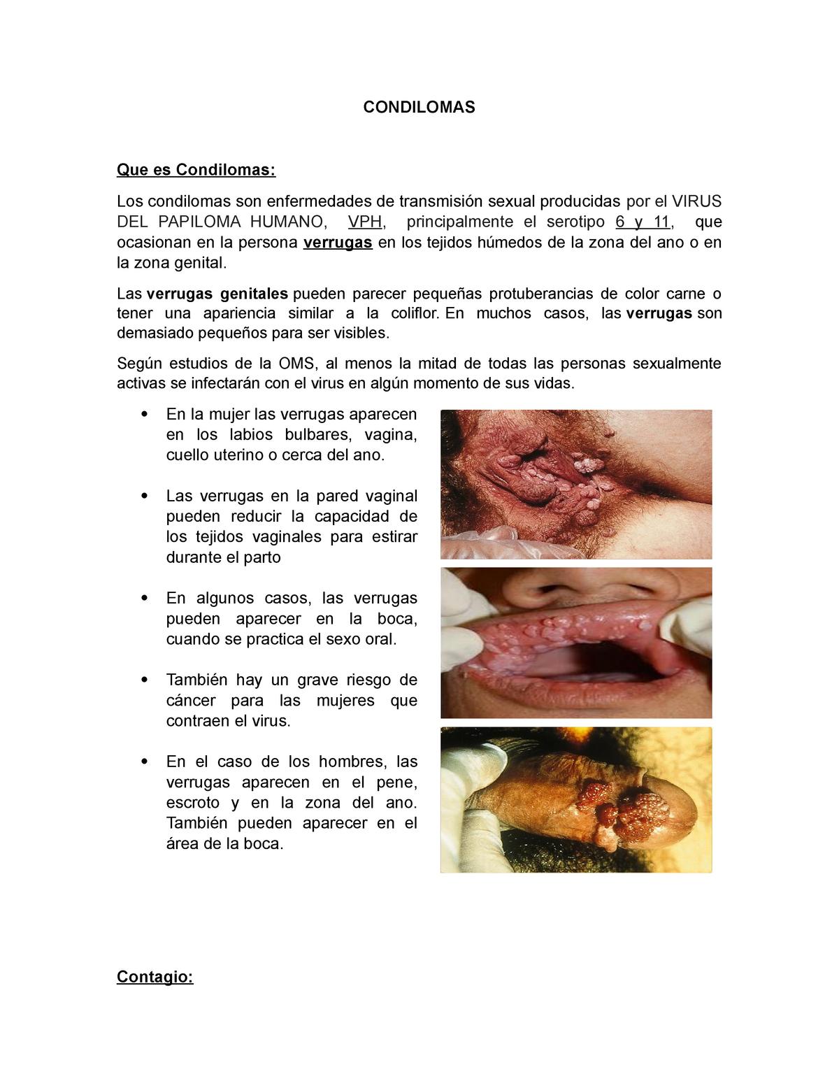 Papiloma humano labios genitales