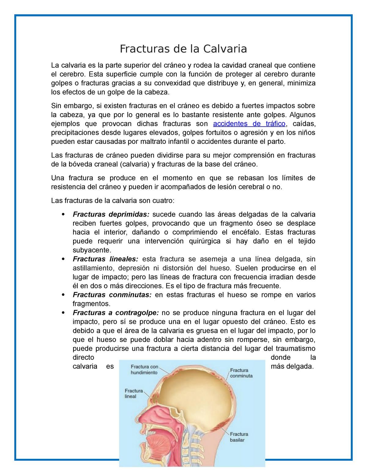Lesión cerebral fractura de cráneo basilar